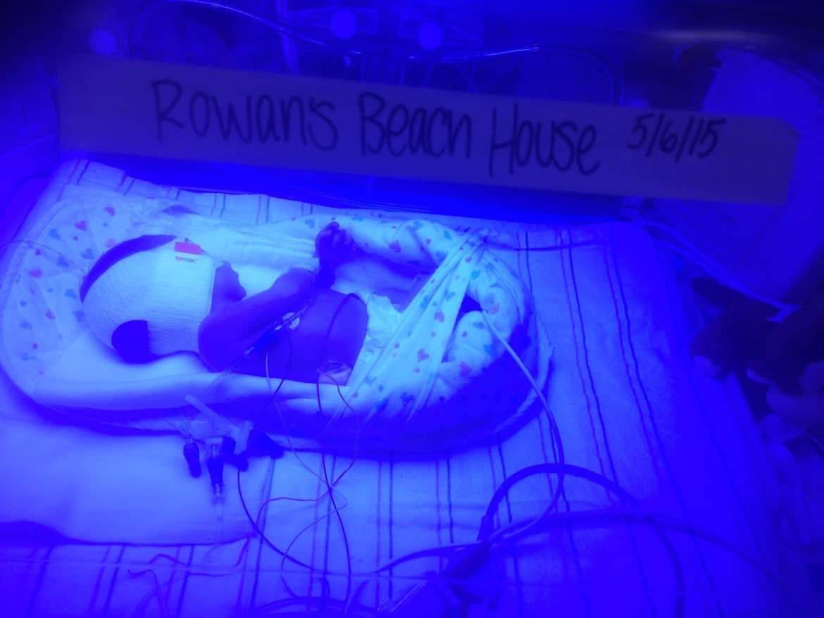 baby being treated for jaundice with blue light