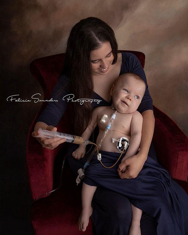 woman tube feeding her baby