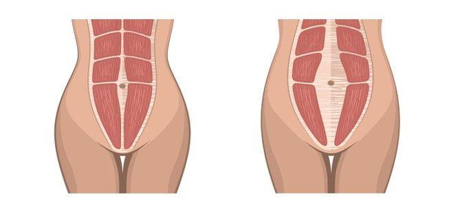 Diastasis Recti example