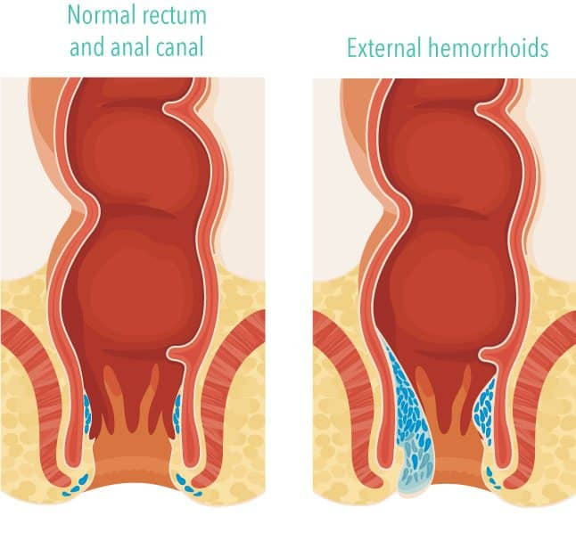 diagram of what hemorrhoids look like compared to a normal rectumdiagram of what hemorrhoids look like compared to a normal rectum