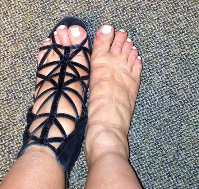 swollen feet from being pregnant in summertime